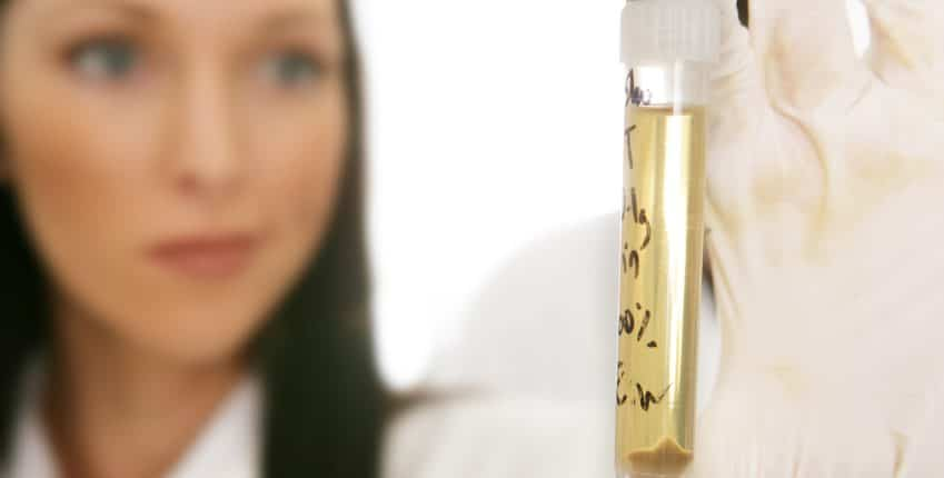 Advantages & Disadvantages to Lab Based Urine Testing
